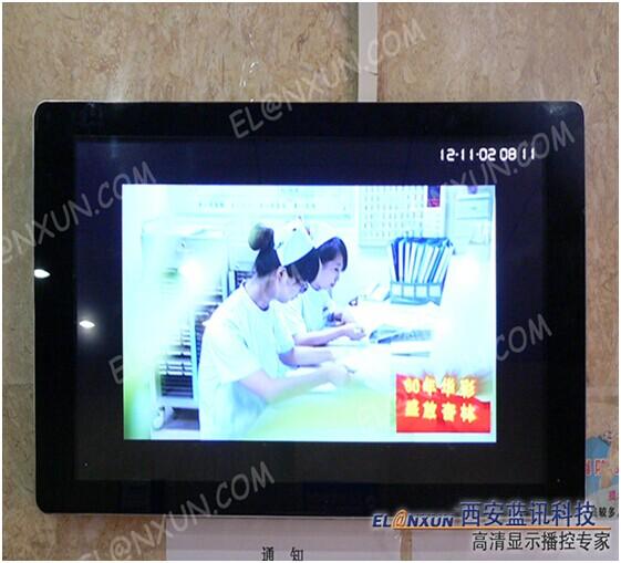 西安医学院附属医学院导引系统部署西安蓝讯液晶广告机